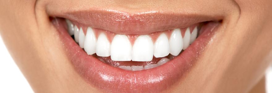 Est-ce que les mutuelles remboursent bien l'orthodontie pour les adultes ?